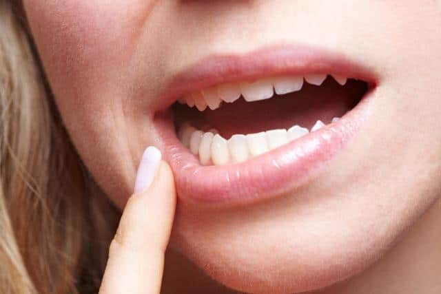 6 Common Complications After Wisdom Tooth Surgery Kenneth Schweizer Dds Pa